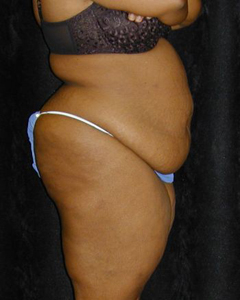Tummy Tuck Patient 11652 Before Photo # 1