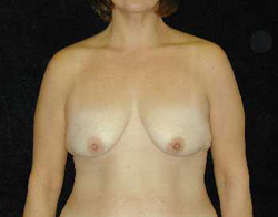Breast Lift Patient 17890 Before Photo # 1