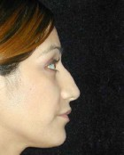 Nose Surgery Patient 86926