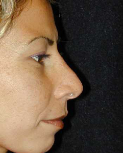 Nose Surgery Patient 99917 After Photo # 2