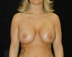 Breast Lift Patient 77606 After Photo # 2