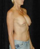 Patient # 47612 Before Photo Thumbnail # 5