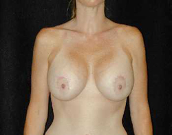 Breast Lift Patient 34329 After Photo # 2