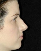 Nose Surgery Patient 91635 Before Photo Thumbnail # 1