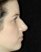 Nose Surgery Patient 91635