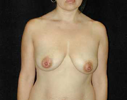 Breast Lift Patient 21643 Before Photo # 1