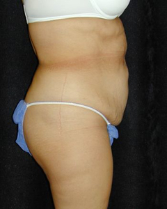 Tummy Tuck Patient 24053 Before Photo # 1