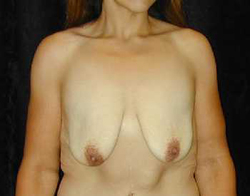 Breast Lift Patient 67936 Before Photo # 1