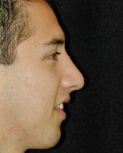 Nose Surgery Patient 54546 After Photo # 2