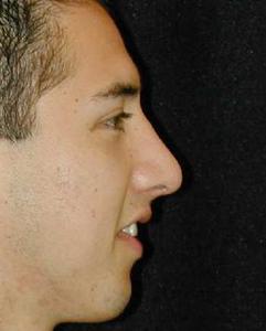 Nose Surgery Patient 54546 After Photo # 2