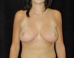 Breast Lift Patient 55929 After Photo # 2