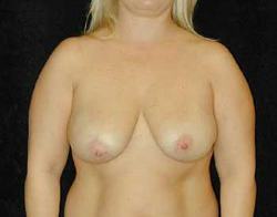 Breast Lift Patient 28658 Before Photo # 1