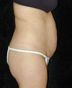 Tummy Tuck Patient 38518 Before Photo # 1