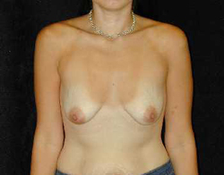 Breast Lift Patient 93690 Before Photo # 1