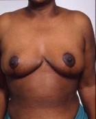 Patient # 47529 After Photo Thumbnail # 4