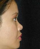 Nose Surgery Patient 32539