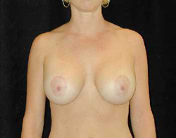 Breast Lift Patient 69523 After Photo # 2