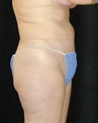 Tummy Tuck Patient 23720
