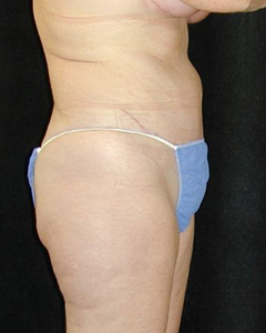 Tummy Tuck Patient 23720 After Photo # 2