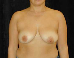 Breast Lift Patient 28449 Before Photo # 1