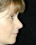 Nose Surgery Patient 63726