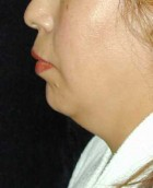 Chin Surgery Patient 16456