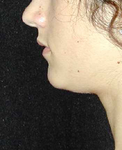 Chin Surgery Patient 92696 Before Photo # 1