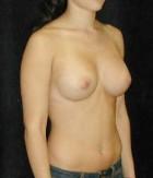 Patient # 43930 After Photo Thumbnail # 6