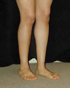 Patient # 38366 After Photo # 6