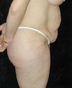Tummy Tuck Patient 19073 Before Photo # 1