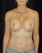 Patient # 47612 After Photo Thumbnail # 4
