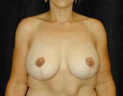 Breast Lift Patient 67936 After Photo # 2
