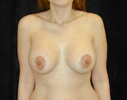 Breast Lift Patient 93690 After Photo # 2