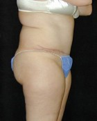 Tummy Tuck Patient 31858