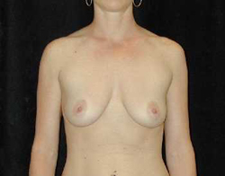Breast Lift Patient 69523 Before Photo # 1
