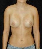 Patient # 28122 After Photo Thumbnail # 4