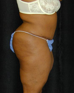 Tummy Tuck Patient 11652 After Photo # 2