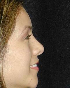 Nose Surgery Patient 77603 After Photo # 2