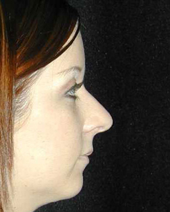 Nose Surgery Patient 15621 Before Photo # 1