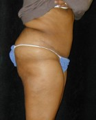 Tummy Tuck Patient 97652