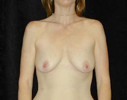 Breast Lift Patient 34329 Before Photo # 1