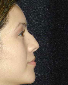 Nose Surgery Patient 77603 Before Photo # 1