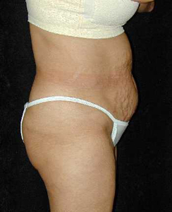 Tummy Tuck Patient 17717 Before Photo # 1