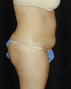 Tummy Tuck Patient 18448 Before Photo # 1