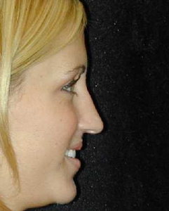 Nose Surgery Patient 99542 Before Photo # 1