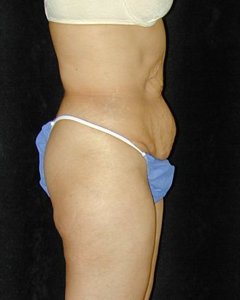 Tummy Tuck Patient 68559 Before Photo # 1