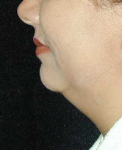 Chin Surgery Patient 17625 Before Photo # 1