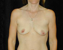 Breast Lift Patient 33751 Before Photo # 1