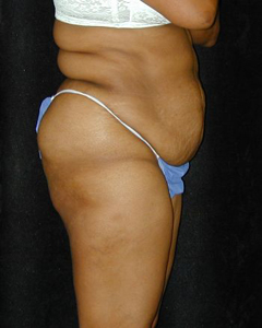 Tummy Tuck Patient 97652 Before Photo # 1