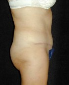 Tummy Tuck Patient 18049